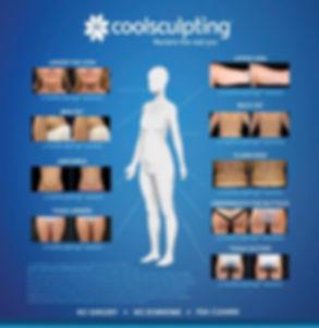 Coolsculpting Treatment Areas.jpg
