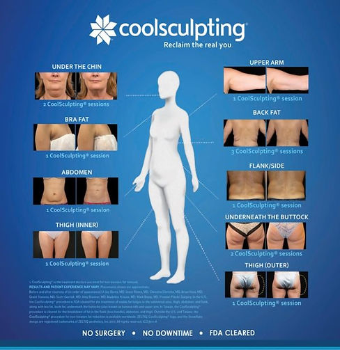 Coolsculpting Treatment Areas.jpg