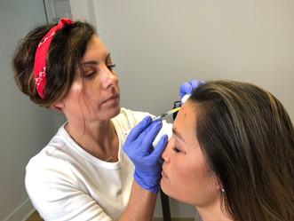 Botox Rochester NY