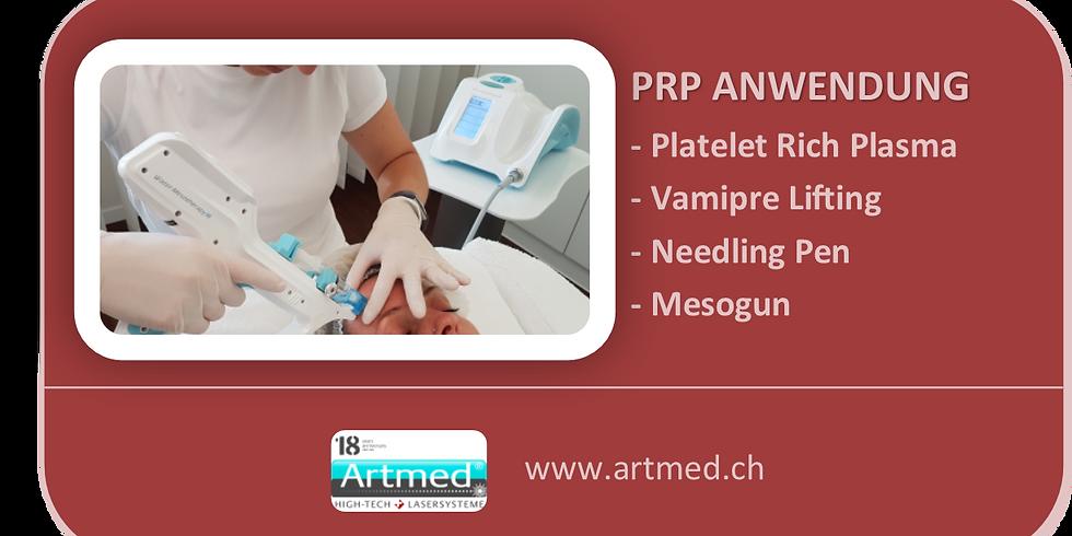 PRP, Platelet Rich Plasma, Vampire Lifting (1)