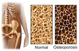 osteoporose.png