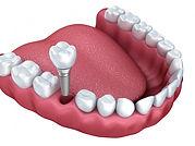 implant-dentaire-unitaire-e1446056885287