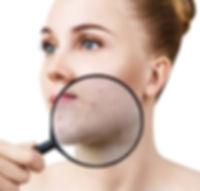 stock acne woman.jpg