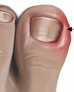 ingroeiende nagel voetzorg waas.jpg