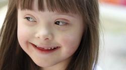 exame-identificar-síndrome-de-down-04.jpg