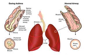 Asthma flare photo