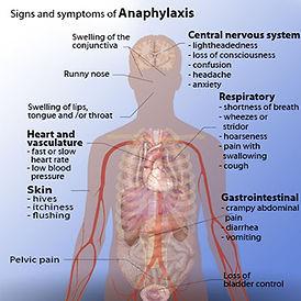 Anaphylaxis photo