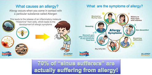 Allergy causes