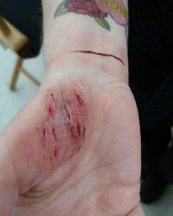 cuts & scratches