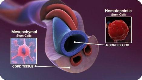 Umbilical Cord Blood.jpg