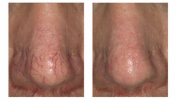 Laser treatment for thread vein