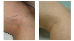 Laser treatment for veins