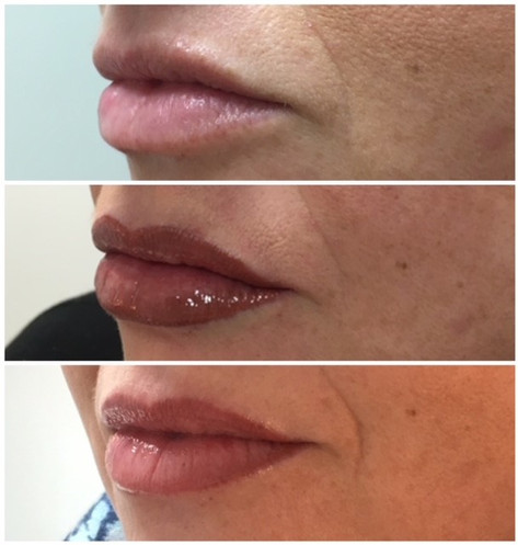 Permanent Lip Enhancement