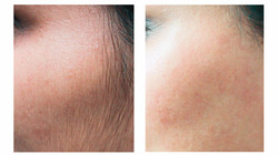 Laser treatment for unwanted hair
