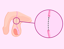 Reversão de Vasectomia