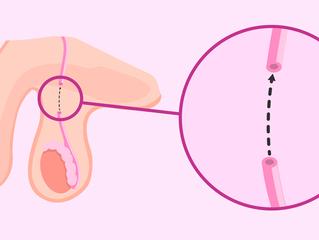É possível reverter a Vasectomia?