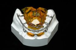 Ortodonzia funzionale - Gribel