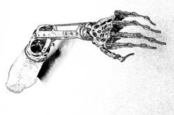 The galvanic brace . . .
