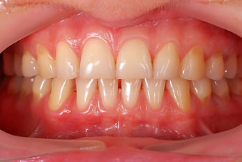 i2m Dental Gingival Contouring