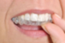 Invisalign at i2m Dental