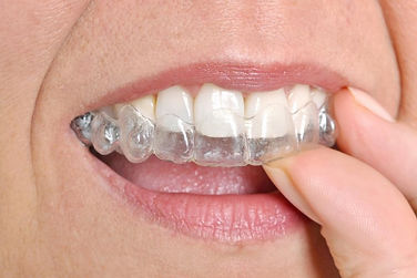 Invisalign at i2m Dental
