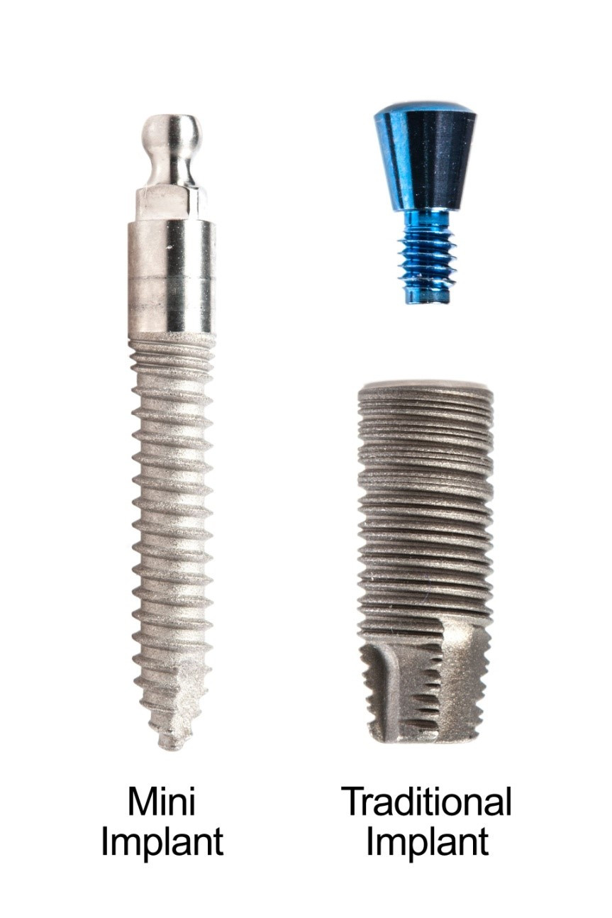 Traditional Implants and Mini Implants