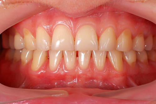 Arrest Gum Disease with a Deep Dental Cleaning