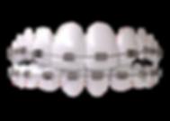braces.png