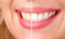 i2m Dental Teeth Whitening