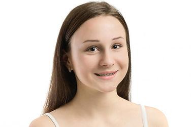 Self-Litigating braces at i2m Dental