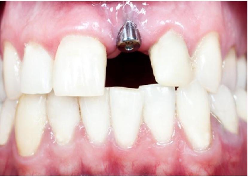 Dental Implants at i2m Dental