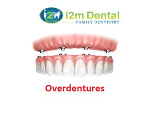 Overdentures at i2m Dental