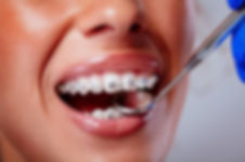 Metal Braces at i2m Dental