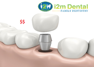 Cost of Dental Implant - i2m Dental