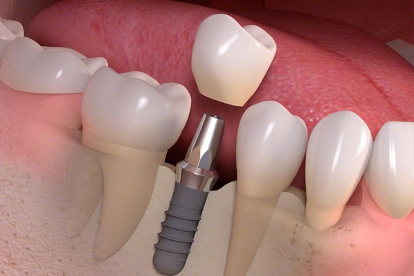 Abutment for dental implant crown