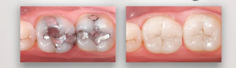 before and after tooth filling