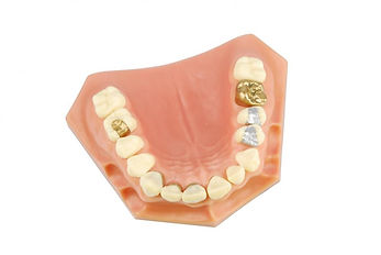 i2m Dental Cosmetic Inlays