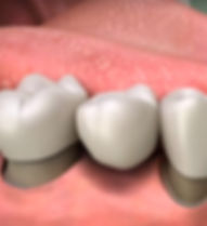 Traditional dental bridge