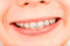 Ceramic Braces at i2m Dental