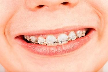 Ceramic Braces at i2m Dental