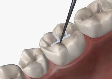 dental sealants at i2m dental