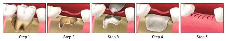 Bone graftig for implants