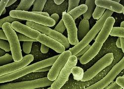 koli-bacteria-123081_640.jpg