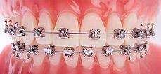 Pitts21-high-tech-teeth.jpg