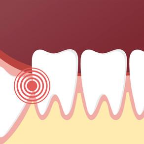 Do I Have Impacted Teeth?