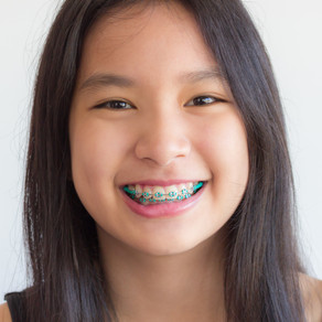 How Do Braces Work for Your Smile?