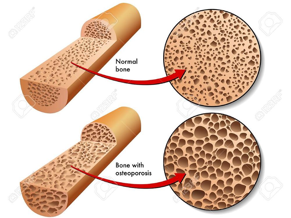 densità ossea