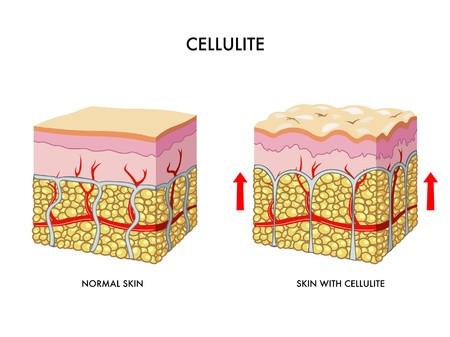 cellulite come si presenta
