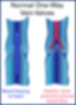 Varicose 1.jpg