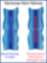 Varicose 2.jpg